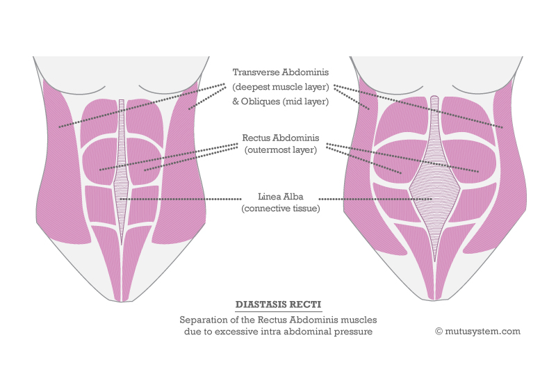 how to fix diastasis recti at home