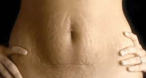What is the Cause of Stretch Marks
