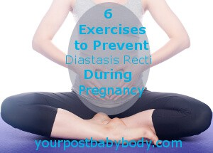 prevent diastasis recti during pregnancy