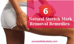 Natural Stretch Mark Removal Remedies