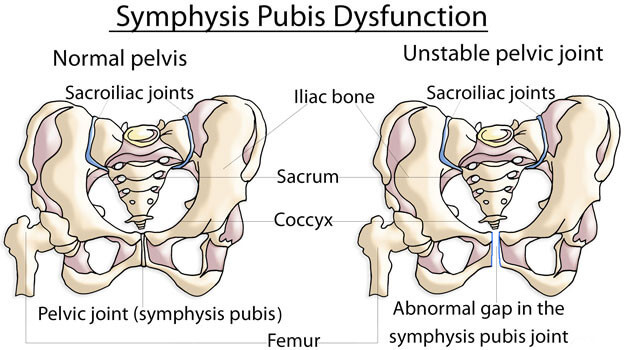 Symphysis Pubis Dysfunction Exercises