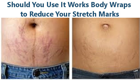 Body Wraps for Stretch Marks
